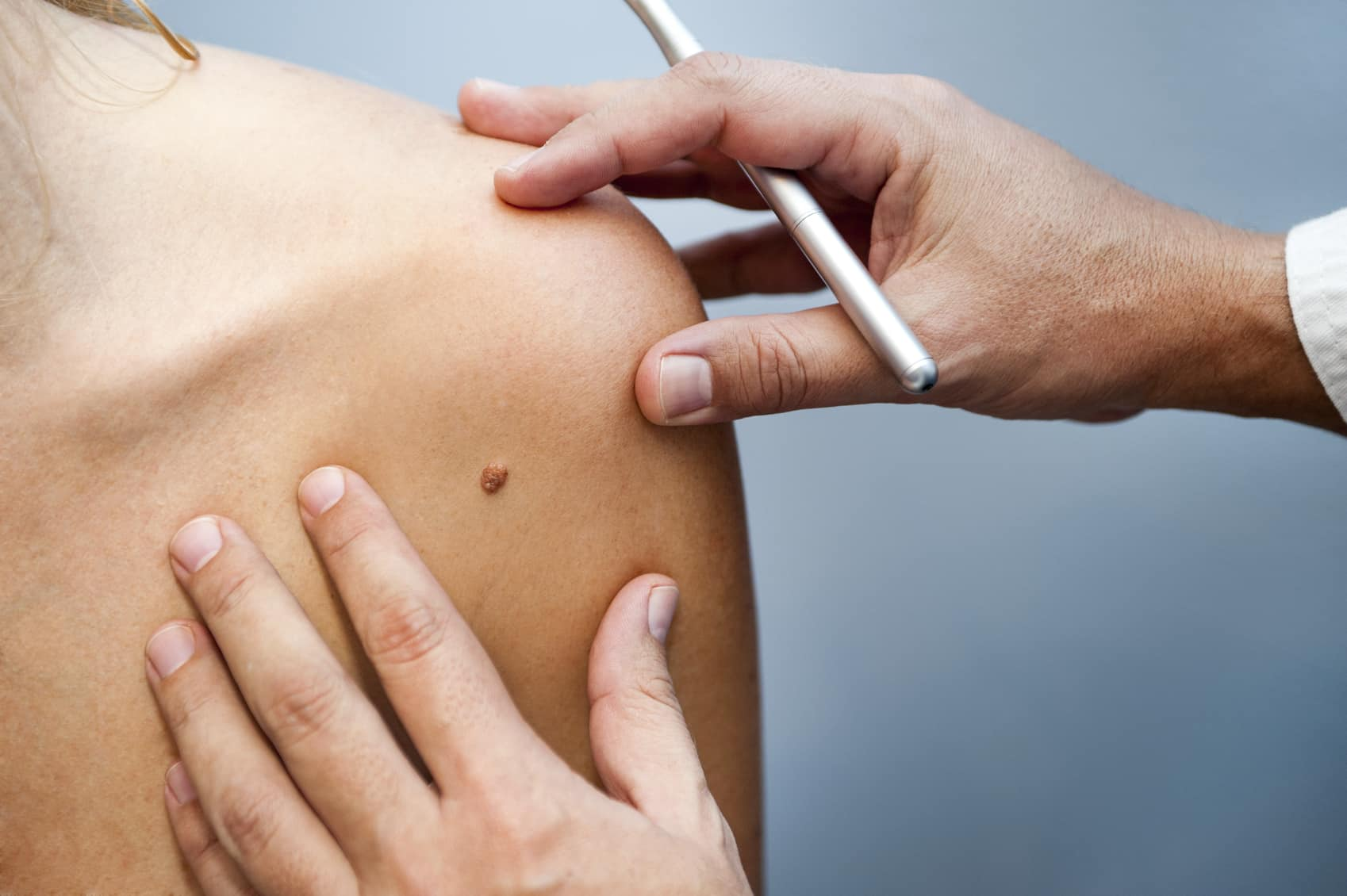 Mohs Surgery, Skin Cancer care in Rhode Island