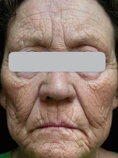 Laser Dermatology At Skinpros Xtrac Lumenis Universal