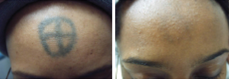 Lumenis M22 Laser Tattoo Removal