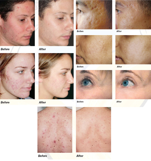 SmoothBeam Laser before and after